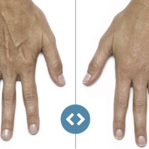 Просте, ефективне та безпечне омолодження рук від «АртМедіка»