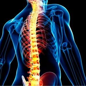 «Не сутулься!». Нова акція від Центру здоров'я спини «Кипарис-М»