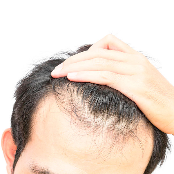 Пересадка волос в Турции методом DHI — золотой стандарт сегодняшнего времени