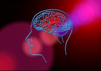 Инсульт-Мозг